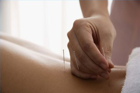 woman undergoing acupuncture