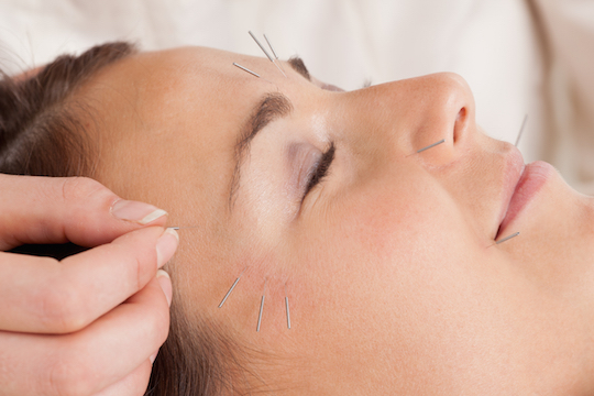 Cosmetic Acupuncture Provided By Vancouver Acupuncturist