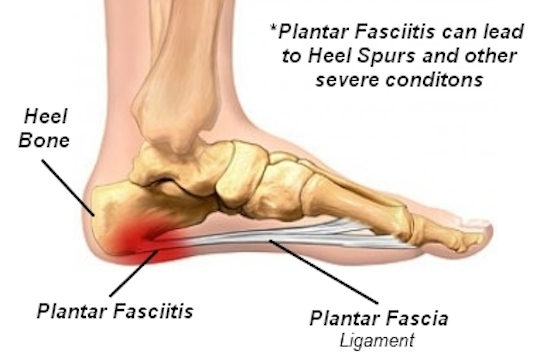 Plantar Fascitis Treatment Offered by Vancouver Chiropractor