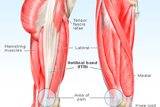 ITB syndrome treatment offered by Vancouver Sports Therapy