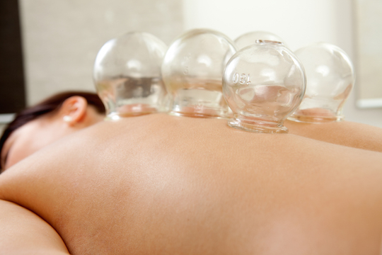 Cupping Provided by Vancouver Acupuncturist and RTCMP